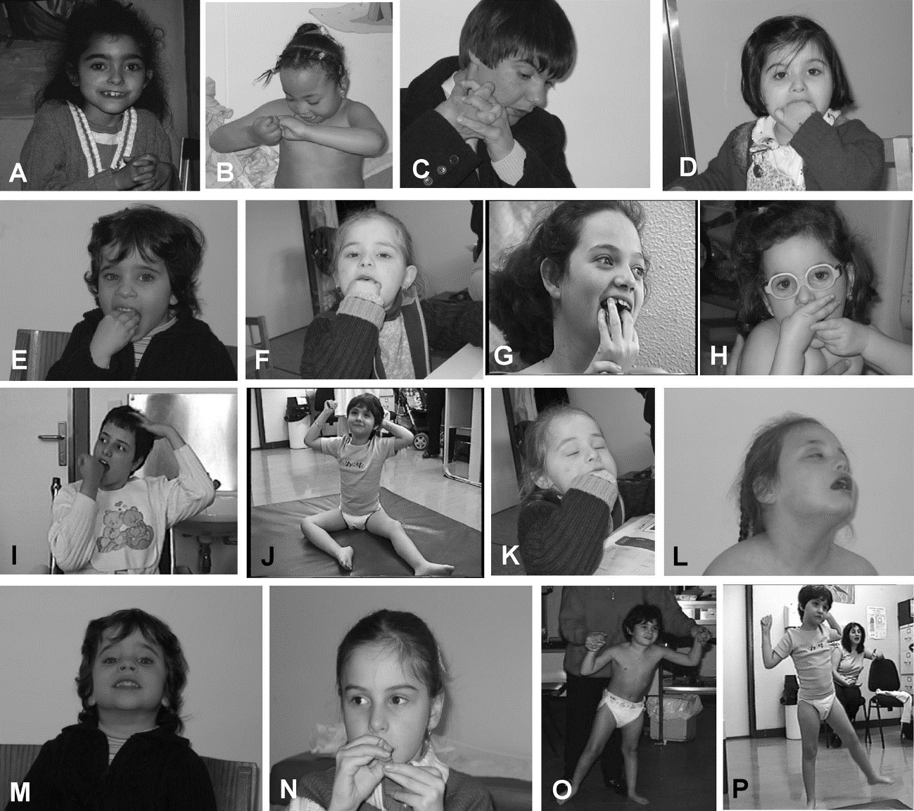 Different topographies of stereotypies in Group I Rett syndrome patients