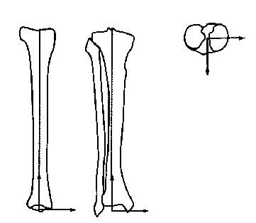 Figura 1.25 : Anatomical system of reference of the tibia segment [Modified by Gage, 2004].
