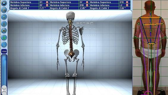 sistema spinal meter e baropodometria per l'età evolutiva